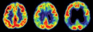 Разрушения в мозъка, причинени от болест на Алцхаймер. Вляво - здрав мозък, дясно - фатално увреден.